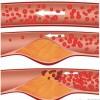 Pastroni arteriet e zemrës me këto 3 përbërës