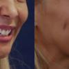 A do të dëshironit një buzëqeshje si Kate Middleton?! Kirurgjia estetike për të formuar gropëza në faqe