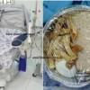 Kontraktori i dializës vs. Shëndet+, shtyhet seanca e parë gjyqësore
