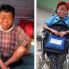 Vazelina i shndërron jetën 13-vjeçares