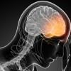 Migrena, ja çfarë kanë të përbashkët pacientët që vuajnë prej saj, përveç dhimbjeve