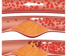 arteries-clear-and-clogged