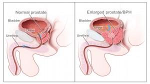 Kanceri i prostates1