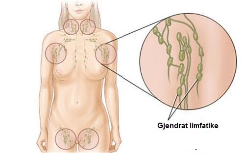 gjendrat limfatike
