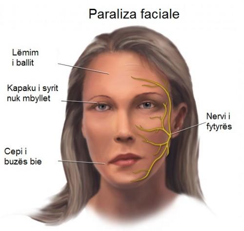 Paraliza faciale