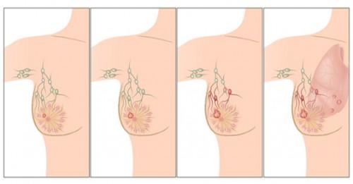 Kanceri i gjirit, parandalim me dietë ushqimore dhe