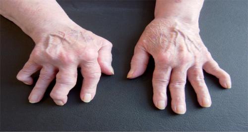 reumatizma