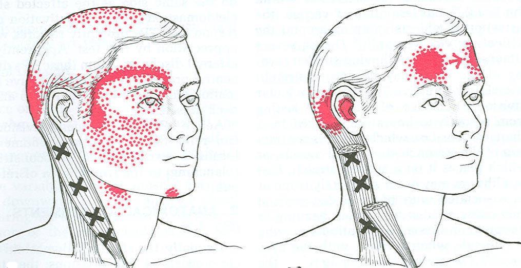 sternocleidomastoid trigger point diagram