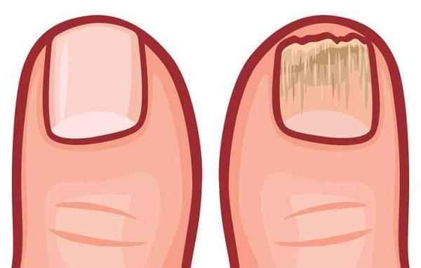 infeksion-ne-kembe
