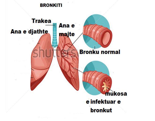 bronkiti