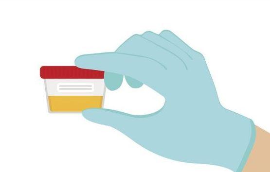 Kanceri i fshikës së urinës, faktorët e riskut