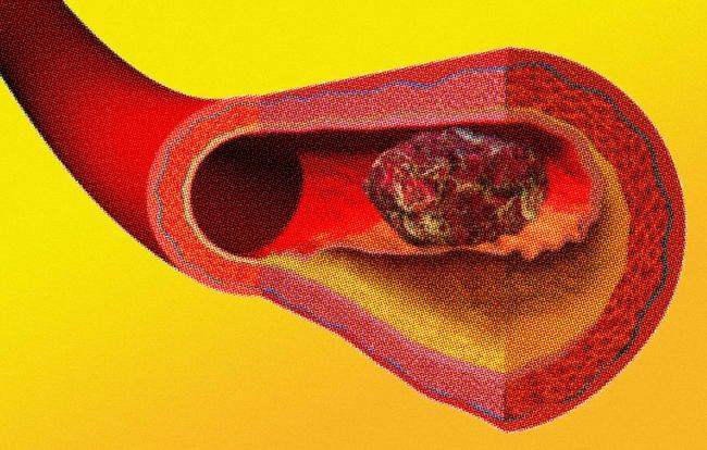 Ja pse mpiksjet e gjakut janë kaq vdekjeprurëse – shenjat që nuk duhet t'i injoroni